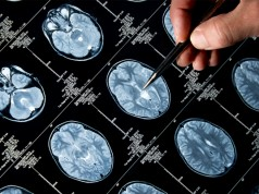 cannabis-can-relieve-alzheimers-symptoms